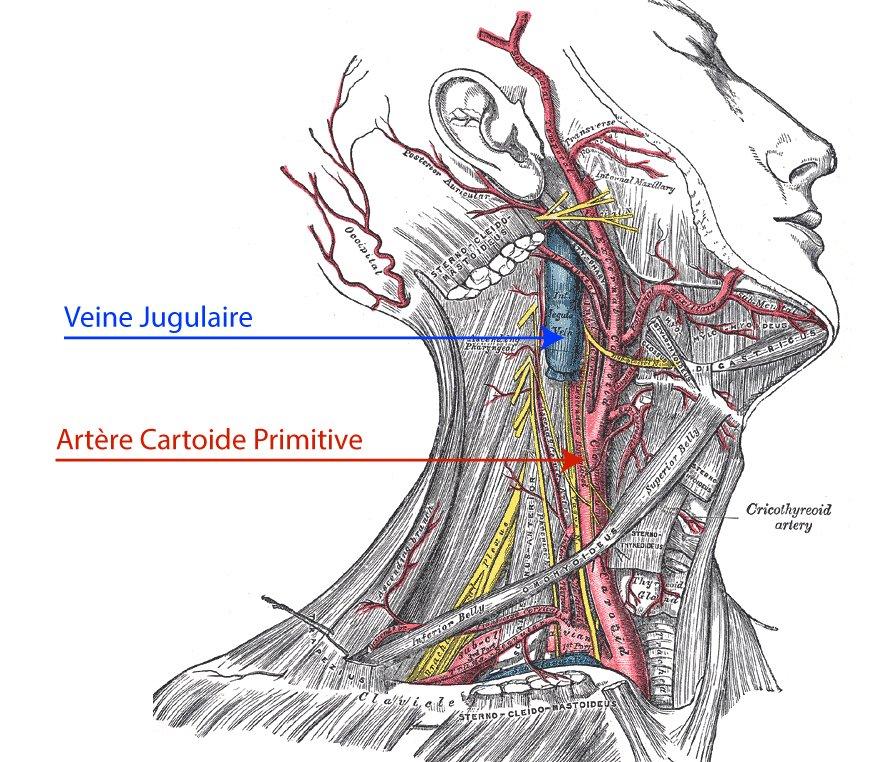 étranglement sanguin sur a veine jugulaire